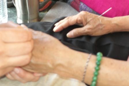 ECIWO-Akupunktur