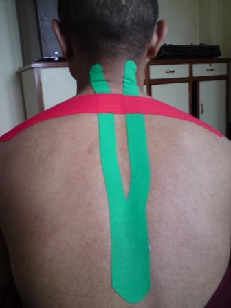 Rückentape